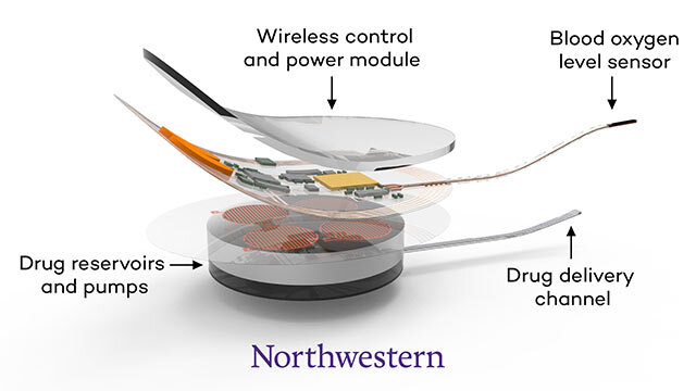 Bioelectronic implant could prevent opioid deaths