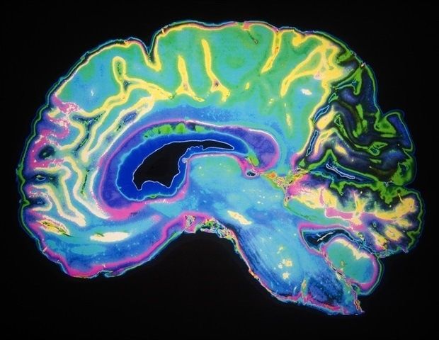 Damage to the white matter is more predictive of cognitive impairment after brain injury