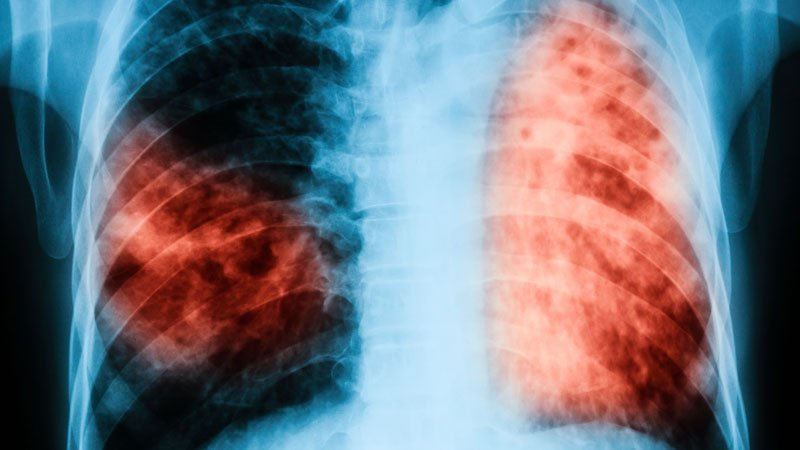 TB Regimen Cuts Treatment Time by a Third